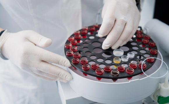 Mikronährstoffdiagnostik