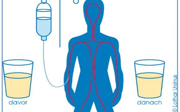 Urinuntersuchung auf Schwermetalle